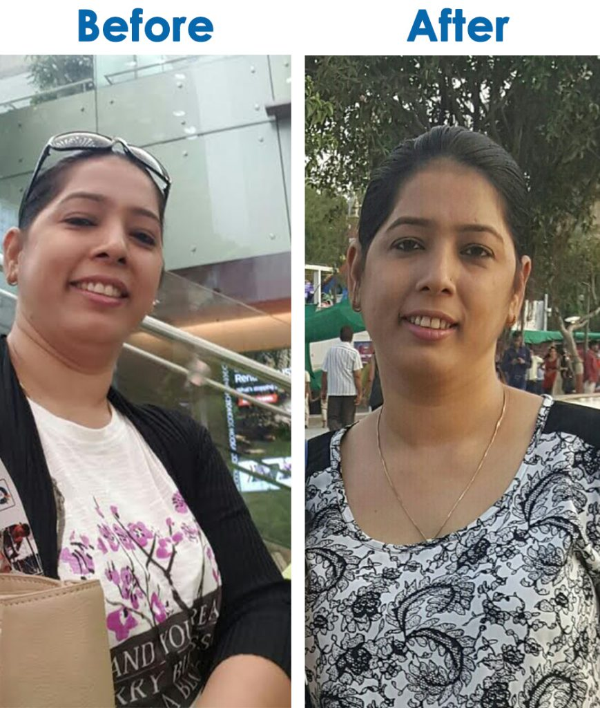 Before & After - Vandana